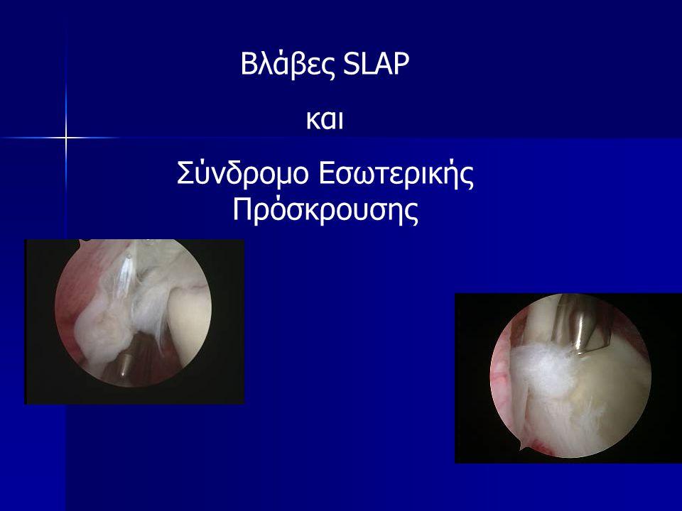 Βλάβες SLAP και Σύνδρομο Εσωτερικής Πρόσκρουσης