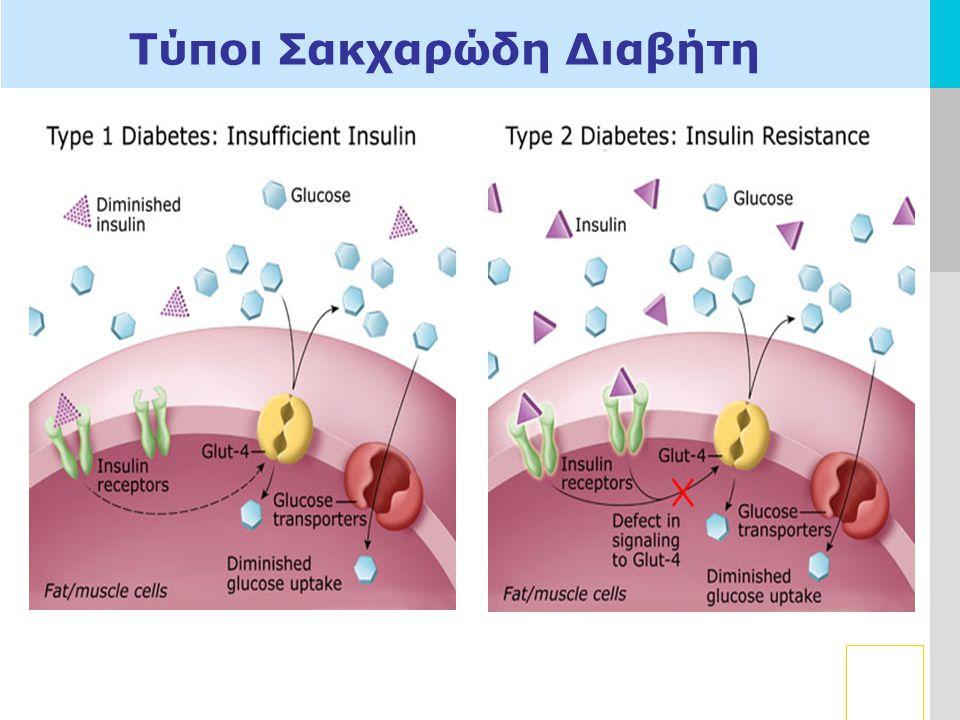 LOGO Τύποι Σακχαρώδη Διαβήτη