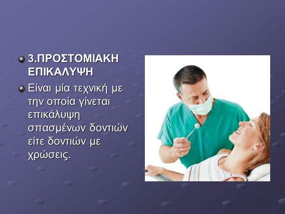 3.ΠΡΟΣΤΟΜΙΑΚΗ ΕΠΙΚΑΛΥΨΗ Είναι μία τεχνική με την οποία γίνεται επικάλυψη σπασμένων δοντιών είτε δοντιών με χρώσεις.