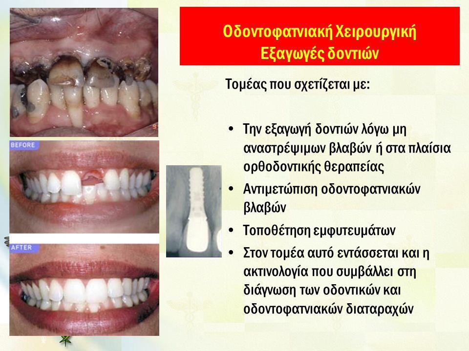 Οδοντοφατνιακή Χειρουργική Εξαγωγές δοντιών Τομέας που σχετίζεται με: Την εξαγωγή δοντιών λόγω μη αναστρέψιμων βλαβών ή στα πλαίσια ορθοδοντικής θεραπείας Αντιμετώπιση οδοντοφατνιακών βλαβών Τοποθέτηση εμφυτευμάτων Στον τομέα αυτό εντάσσεται και η ακτινολογία που συμβάλλει στη διάγνωση των οδοντικών και οδοντοφατνιακών διαταραχών