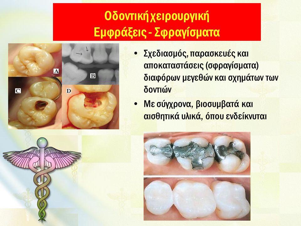 Οδοντική χειρουργική Εμφράξεις - Σφραγίσματα Σχεδιασμός, παρασκευές και αποκαταστάσεις (σφραγίσματα) διαφόρων μεγεθών και σχημάτων των δοντιών Με σύγχρονα, βιοσυμβατά και αισθητικά υλικά, όπου ενδείκνυται