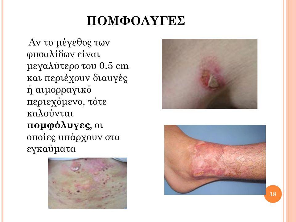 ΦΛΥΚΤΑΙΝΕΣ 19 Είναι φυσαλίδες με πυώδες περιεχόμενο και περιβάλλονται από ερυθρά άλω.