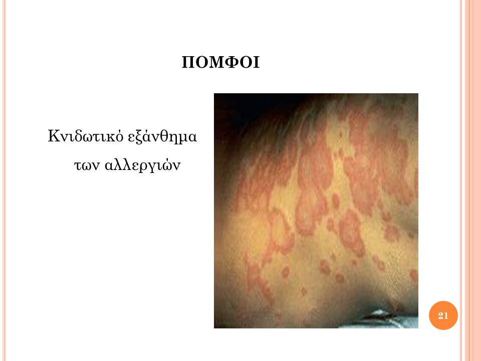 ΕΛΚΗ & ΡΩΓΜΕΣ 22 Βαρύτερες βλάβες του δέρματος με απώλεια ιστού.