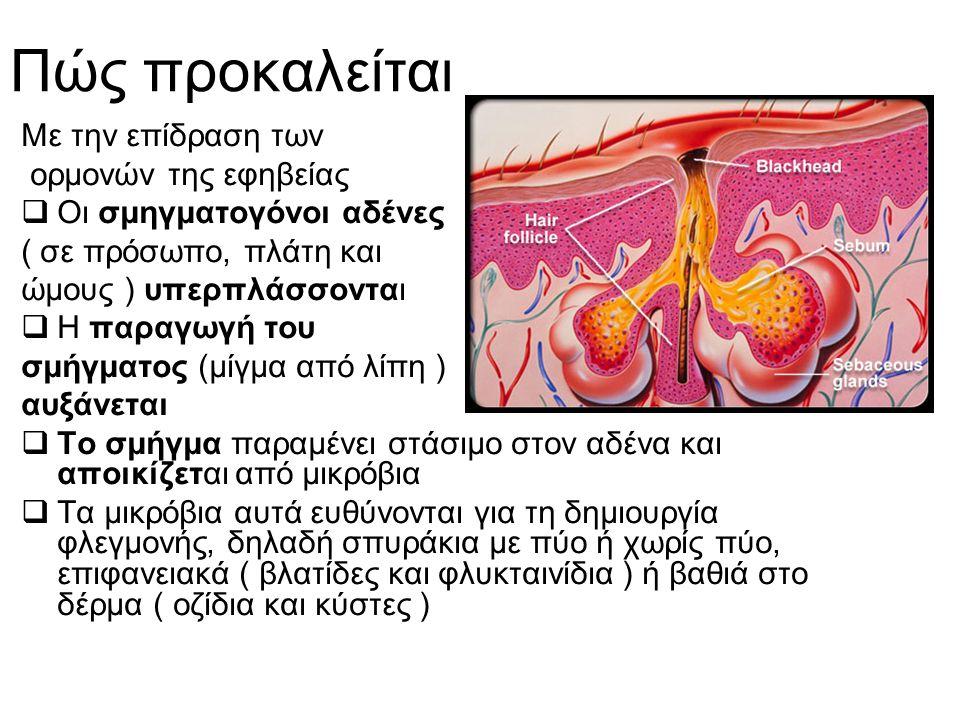Πώς προκαλείται Με την επίδραση των ορμονών της εφηβείας  Οι σμηγματογόνοι αδένες ( σε πρόσωπο, πλάτη και ώμους ) υπερπλάσσονται  Η παραγωγή του σμή