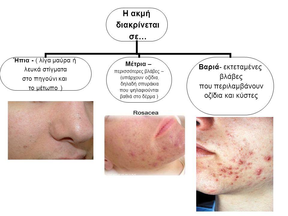 Η ακμή διακρίνεται σε… Ήπια - ( λίγα μαύρα ή λευκά στίγματα στο πηγούνι και το μέτωπο ) Μέτρια – περισσότερες βλάβες – (υπάρχουν οζίδια, δηλαδή σπυράκ