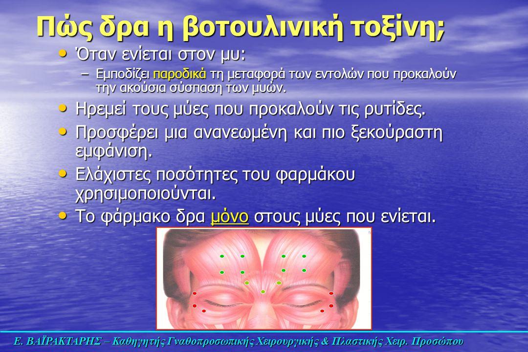 Ε. ΒΑΪΡΑΚΤΑΡΗΣ – Καθηγητής Γναθοπροσωπικής Χειρουργικής & Πλαστικής Χειρ. Προσώπου Πώς δρα η βοτουλινική τοξίνη; Όταν ενίεται στον μυ: Όταν ενίεται στ