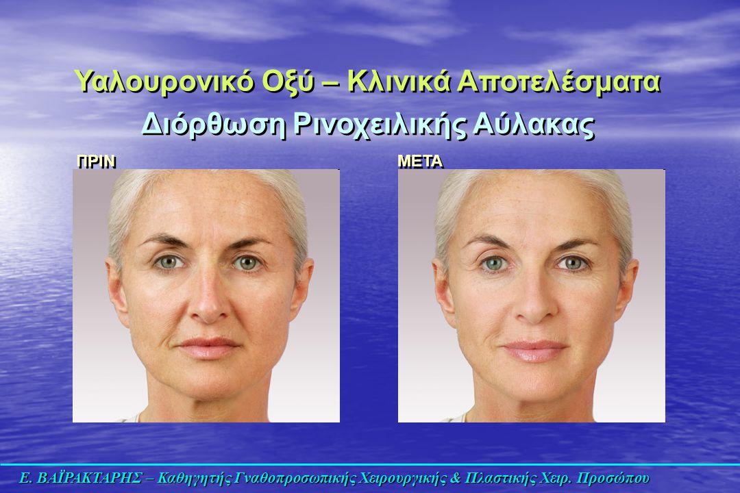 Ε. ΒΑΪΡΑΚΤΑΡΗΣ – Καθηγητής Γναθοπροσωπικής Χειρουργικής & Πλαστικής Χειρ. Προσώπου Υαλουρονικό Οξύ – Κλινικά Αποτελέσματα Διόρθωση Ρινοχειλικής Αύλακα