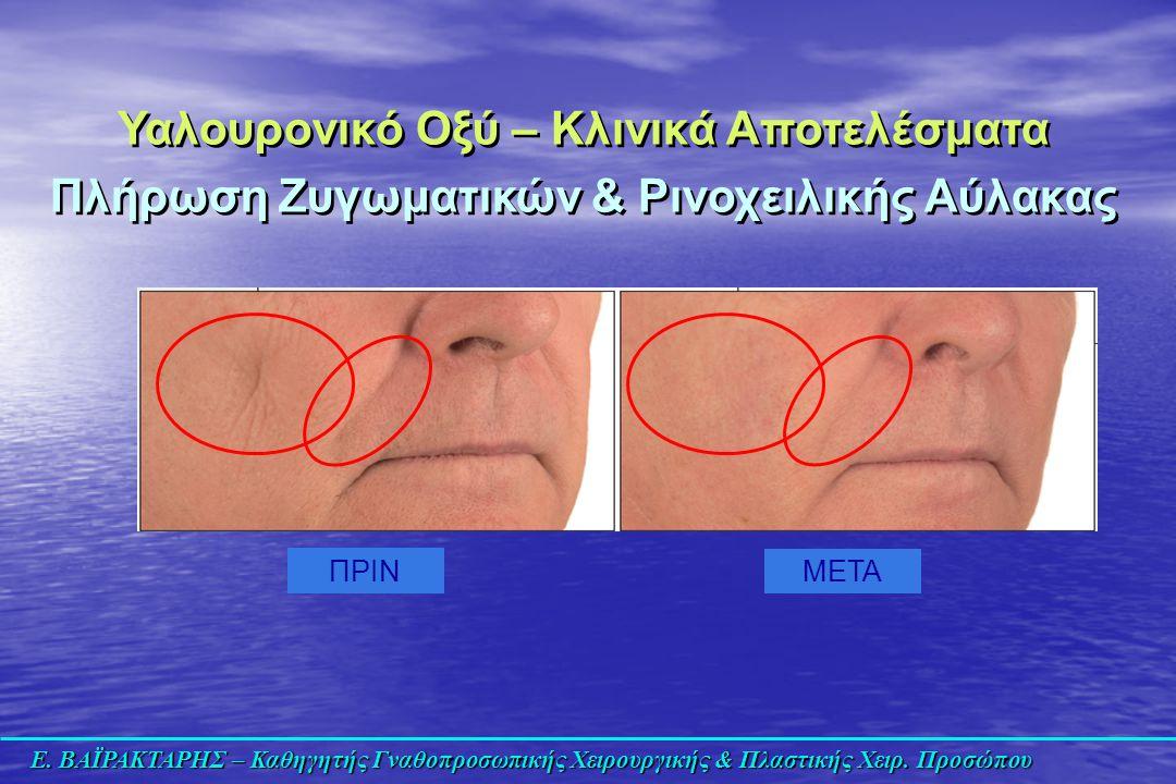 Ε. ΒΑΪΡΑΚΤΑΡΗΣ – Καθηγητής Γναθοπροσωπικής Χειρουργικής & Πλαστικής Χειρ. Προσώπου ΠΡΙΝ ΜΕΤΑ Υαλουρονικό Οξύ – Κλινικά Αποτελέσματα Πλήρωση Ζυγωματικώ