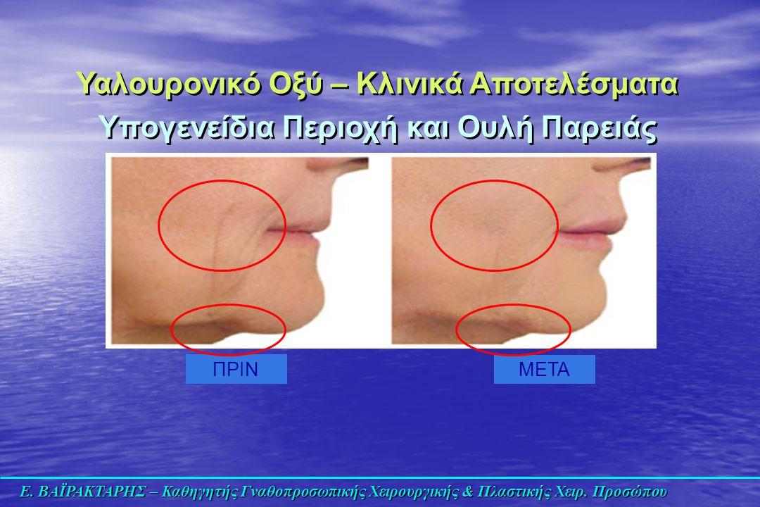 Ε. ΒΑΪΡΑΚΤΑΡΗΣ – Καθηγητής Γναθοπροσωπικής Χειρουργικής & Πλαστικής Χειρ. Προσώπου ΠΡΙΝ ΜΕΤΑ Υαλουρονικό Οξύ – Κλινικά Αποτελέσματα Υπογενείδια Περιοχ