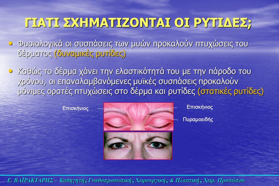 Ε. ΒΑΪΡΑΚΤΑΡΗΣ – Καθηγητής Γναθοπροσωπικής Χειρουργικής & Πλαστικής Χειρ. Προσώπου Φυσιολογικά οι συσπάσεις των μυών προκαλούν πτυχώσεις του δέρματος