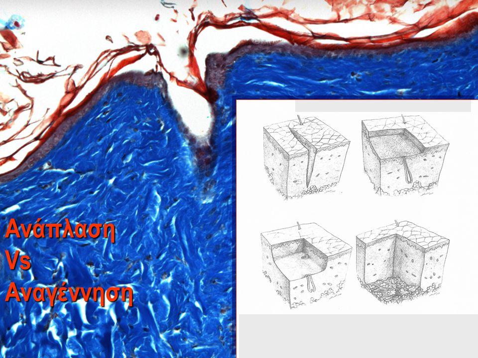 …Ωρίμανση – γήρανση του δέρματος…  4 μηχανισμοί ωρίμανσης του δέρματος: 1.
