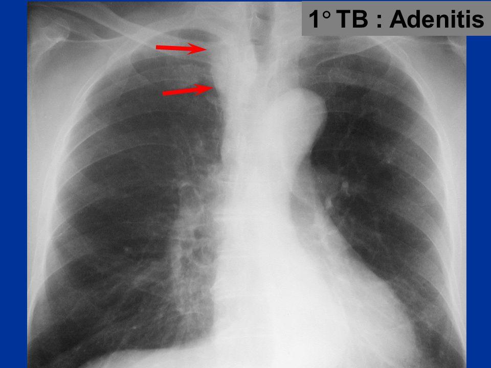 1  TB : Adenitis