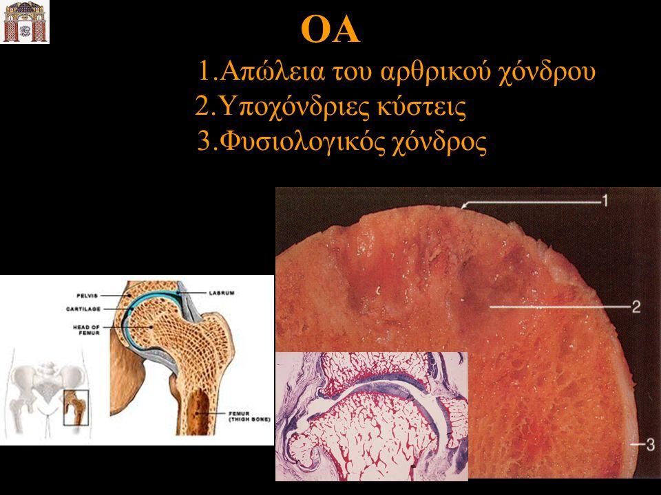 ΟΑ 1.Απώλεια του αρθρικού χόνδρου 2.Υποχόνδριες κύστεις 3.Φυσιολογικός χόνδρος