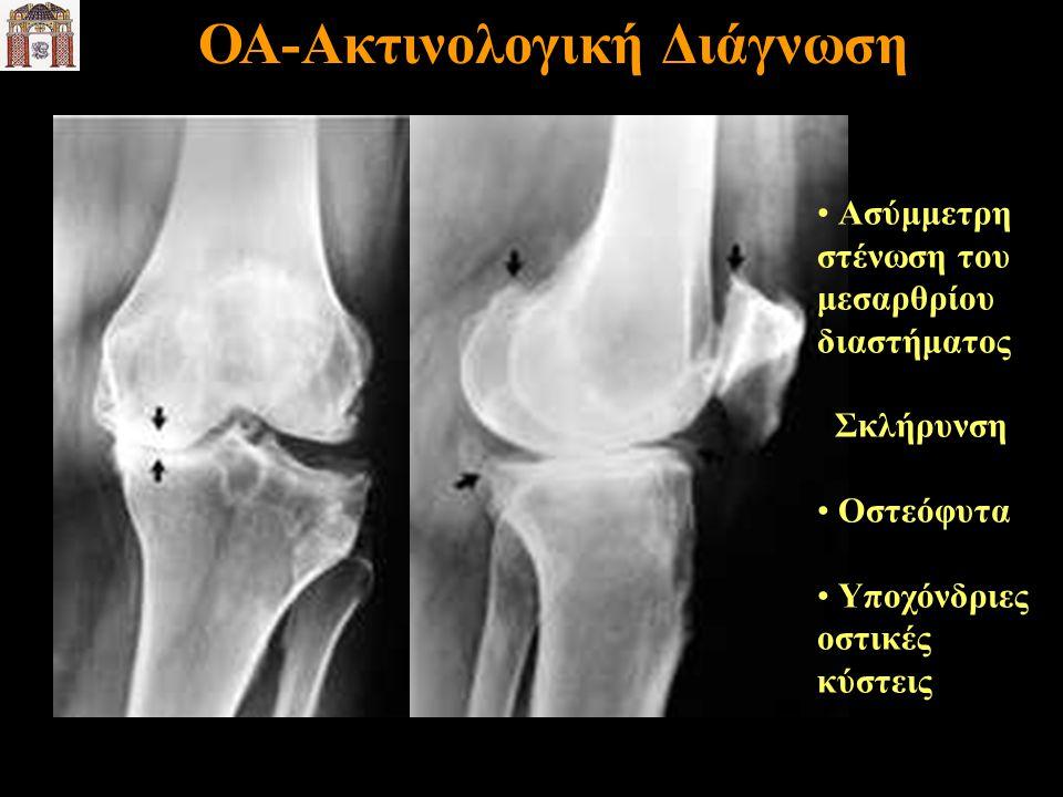 Ασύμμετρη στένωση του μεσαρθρίου διαστήματος Σκλήρυνση Οστεόφυτα Υποχόνδριες οστικές κύστεις ΟΑ-Ακτινολογική Διάγνωση