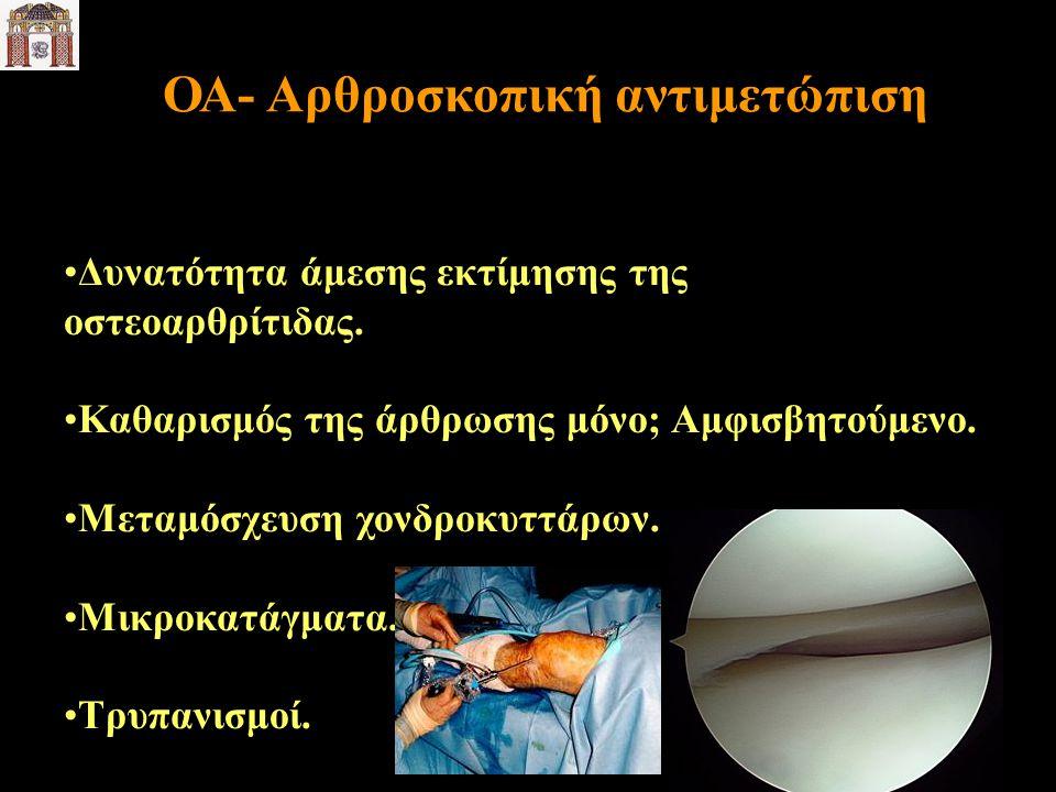ΟΑ- Αρθροσκοπική αντιμετώπιση Δυνατότητα άμεσης εκτίμησης της οστεοαρθρίτιδας. Καθαρισμός της άρθρωσης μόνο; Αμφισβητούμενο. Μεταμόσχευση χονδροκυττάρ