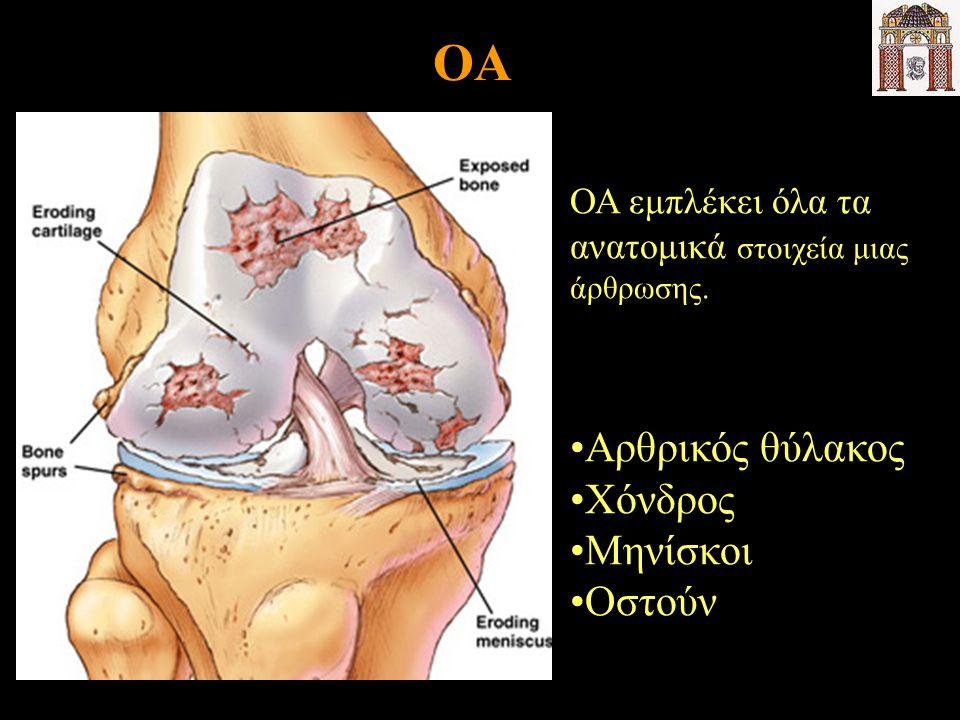 OA ΟΑ εμπλέκει όλα τα ανατομικά στοιχεία μιας άρθρωσης. Αρθρικός θύλακος Χόνδρος Μηνίσκοι Οστούν