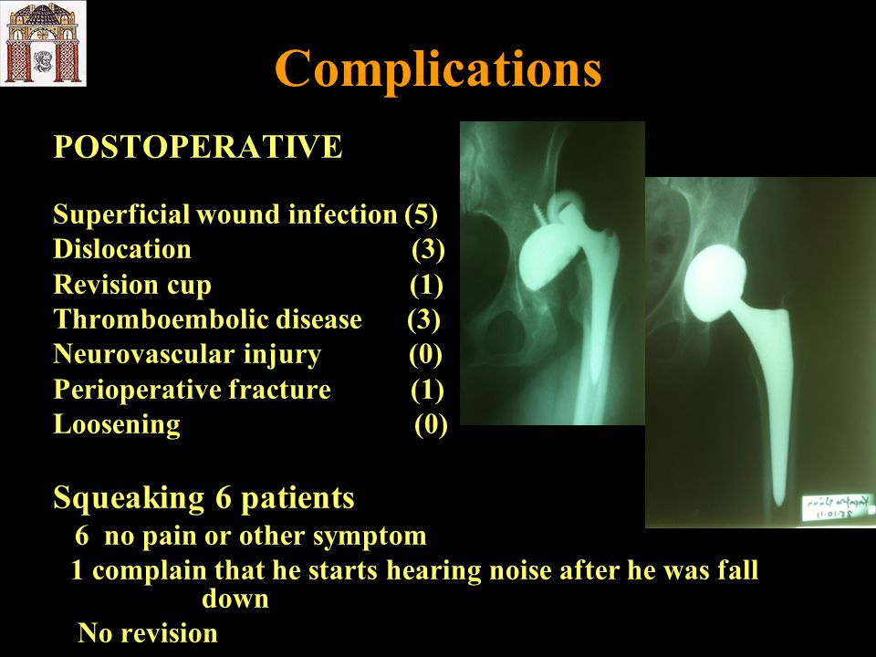 Complications POSTOPERATIVE Superficial wound infection (5) Dislocation (3) Revision cup (1) Thromboembolic disease (3) Neurovascular injury (0) Perio