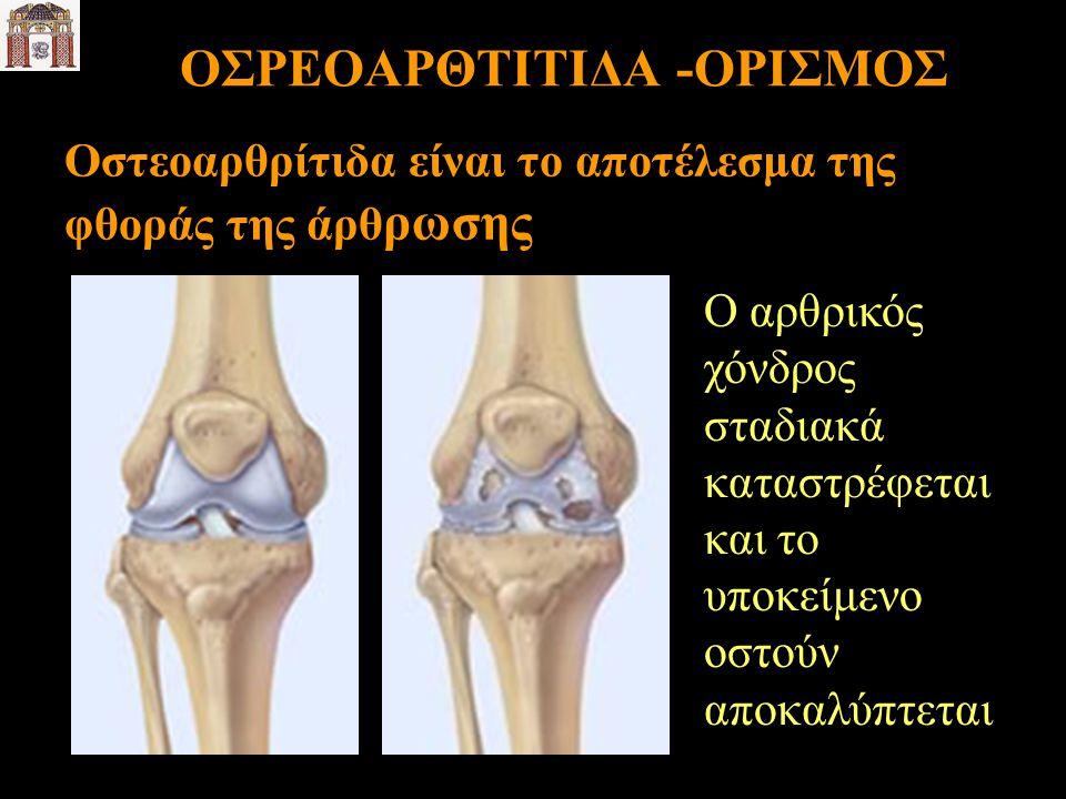 ΟΣΡΕΟΑΡΘΤΙΤΙΔΑ -ΟΡΙΣΜΟΣ Οστεοαρθρίτιδα είναι το αποτέλεσμα της φθοράς της άρθ ρωσης Ο αρθρικός χόνδρος σταδιακά καταστρέφεται και το υποκείμενο οστούν