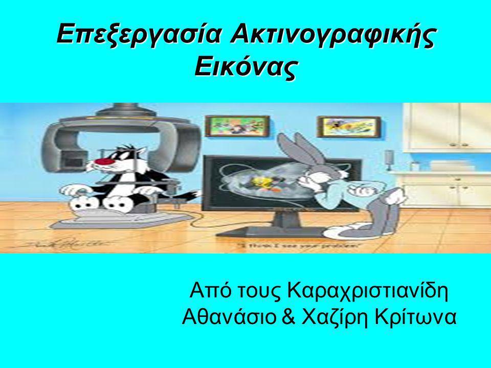 Επεξεργασία Ακτινογραφικής Εικόνας Από τους Καραχριστιανίδη Αθανάσιο & Χαζίρη Κρίτωνα