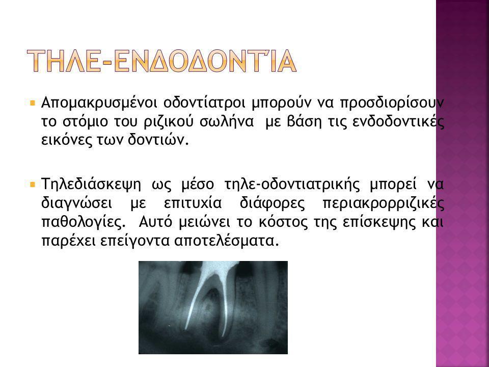  Απομακρυσμένοι οδοντίατροι μπορούν να προσδιορίσουν το στόμιο του ριζικού σωλήνα με βάση τις ενδοδοντικές εικόνες των δοντιών.  Τηλεδιάσκεψη ως μέσ