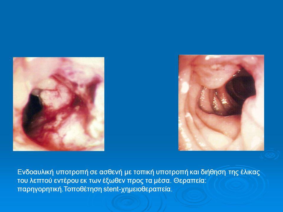Ενδοαυλική υποτροπή σε ασθενή με τοπική υποτροπή και διήθηση της έλικας του λεπτού εντέρου εκ των έξωθεν προς τα μέσα.
