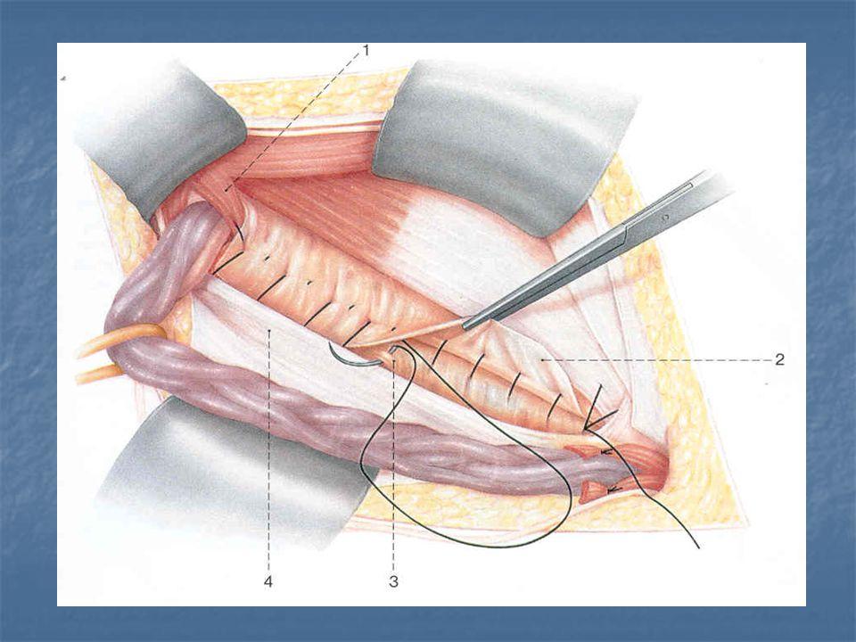 Συνέχεια της μελέτης μέχρι που ο αριθμός των χειρουργημένων να φτάσει τους 900 Υποτροπή σε σχέση με μέθοδο Υποτροπή σε σχέση με μέθοδο Υποτροπή σε σχέση με μέγεθος κηλών Υποτροπή σε σχέση με μέγεθος κηλών Επιπλοκές πλεγμάτων Επιπλοκές πλεγμάτων Ανάγκη χορήγησης ή μη αντιβιοτικών Ανάγκη χορήγησης ή μη αντιβιοτικών Πλεονεκτήματα είδους αναισθησίας Πλεονεκτήματα είδους αναισθησίας