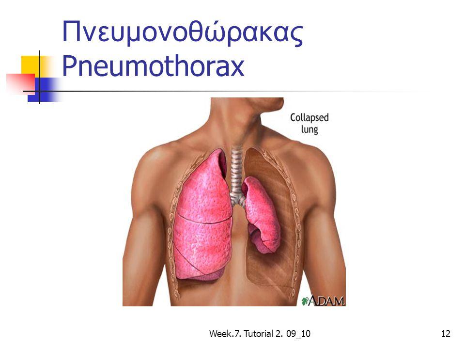 Week.7. Tutorial 2. 09_1012 Πνευμονοθώρακας Pneumothorax