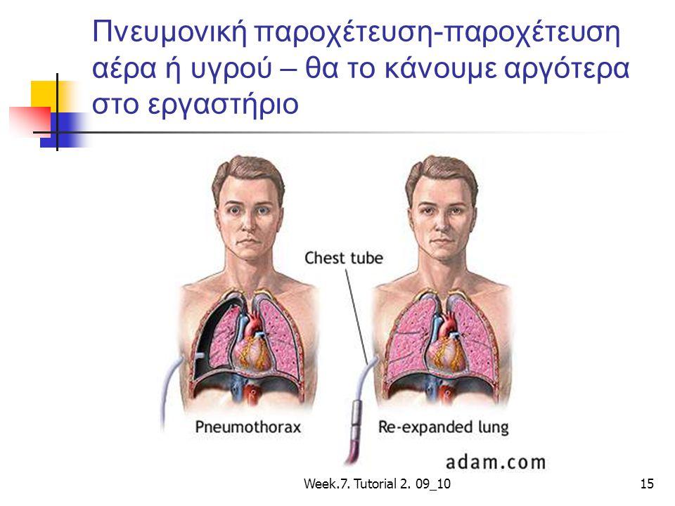 Week.7. Tutorial 2. 09_1015 Πνευμονική παροχέτευση-παροχέτευση αέρα ή υγρού – θα το κάνουμε αργότερα στο εργαστήριο