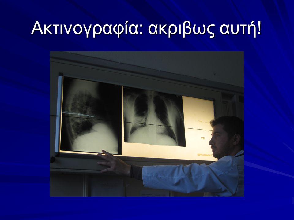 Whonet E.coli εξωτ.ασθενων Ιαν- Ιουνιος 2010 [http://www.mednet.gr/whonet/] Κοτριμοξαζόλη25,5% Σιπροφλοξασίνη9,9% Αμοξ/κλαβ3,8% Κεφαλοθινη11,8%