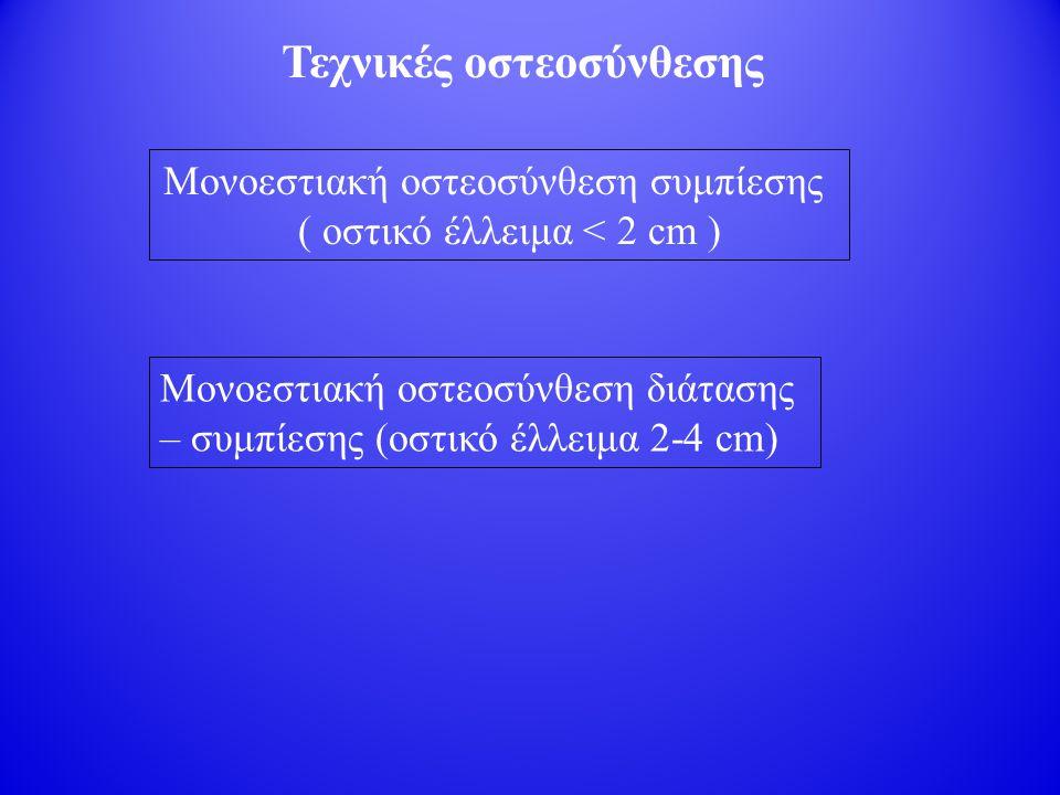 Τεχνικές οστεοσύνθεσης Μονοεστιακή οστεοσύνθεση συμπίεσης ( οστικό έλλειμα < 2 cm ) Μονοεστιακή οστεοσύνθεση διάτασης – συμπίεσης (οστικό έλλειμα 2-4