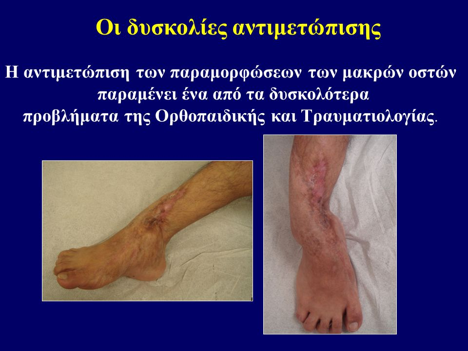 Η αντιμετώπιση των παραμορφώσεων των μακρών οστών παραμένει ένα από τα δυσκολότερα προβλήματα της Ορθοπαιδικής και Τραυματιολογίας.