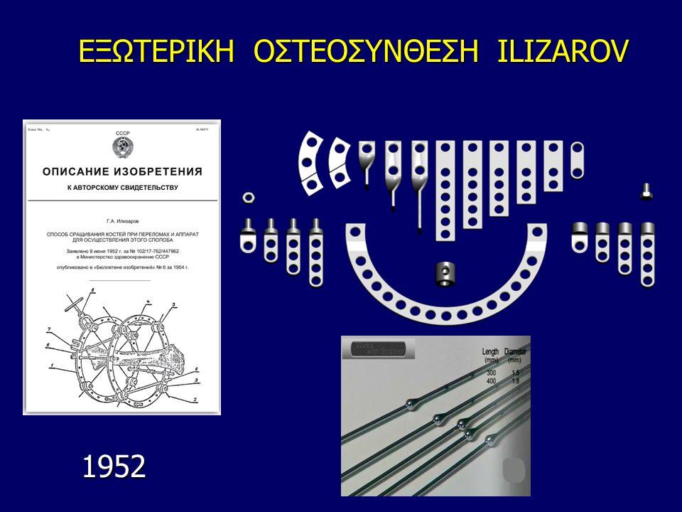 ΕΞΩΤΕΡΙΚΗ ΟΣΤΕΟΣΥΝΘΕΣΗ ILIZAROV 1952