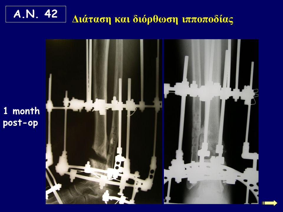 Τεχνική μονοεστιακής διατατικής οστεοσύνθεσης Η τεχνική μπορεί να εφαρμοστεί στις υπερτροφικές ψευδαρθρώσεις, χωρίς στοιχεία οστεοσκλήρυνσης στα κατεαγότα άκρα, με οστικό έλλειμμα μέχρι 4 εκ.