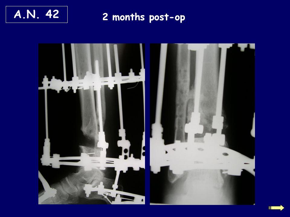 2 months post-op A.N. 42
