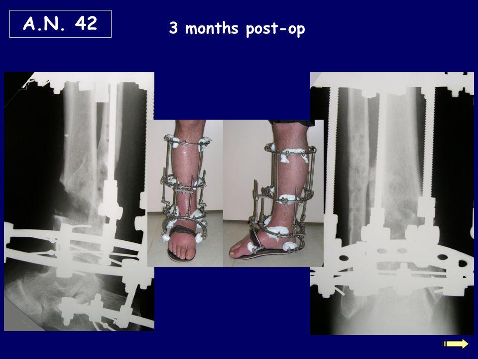 3 months post-op A.N. 42