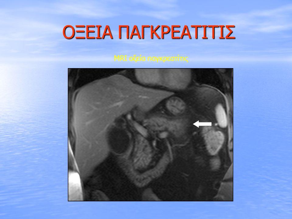 ΟΞΕΙΑ ΠΑΓΚΡΕΑΤΙΤΙΣ ΟΞΕΙΑ ΠΑΓΚΡΕΑΤΙΤΙΣ Αίτια Αίτια ♦ Λιθίαση χοληφόρων (40%) ♦ Αλκοόλ (35%) : κατανάλωση >100g/ημ για >5 έτη, γενετικοί & περιβαλλοντικοί παράγοντες παράγοντες ♦ Ca παγκρέατος ( Intraductal papillary mucinous neoplasm ) ♦ Υπερτριγλυκεριδαιμία (2%) : τριγλυκερίδια ορού > 2,000mg/dL ( ΣΔ, παχυσαρκία, υποθυρεοειδισμός ) παχυσαρκία, υποθυρεοειδισμός ) ♦ Μετά-ERCP (5%) : 35-70% των ασθενών παρουσιάζουν ασυμπτωματική υπεραμυλασαιμία – παράγοντες κινδύνου → ♀, μικρή ηλικία, εμπειρία ενδοσκόπου, αρθ.