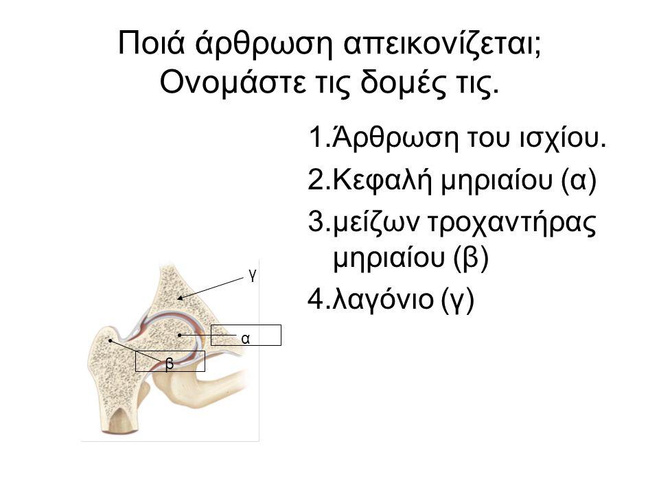 Ποιά άρθρωση απεικονίζεται; Ονομάστε τις δομές τις. 1.Άρθρωση του ισχίου. 2.Κεφαλή μηριαίου (α) 3.μείζων τροχαντήρας μηριαίου (β) 4.λαγόνιο (γ) α β γ