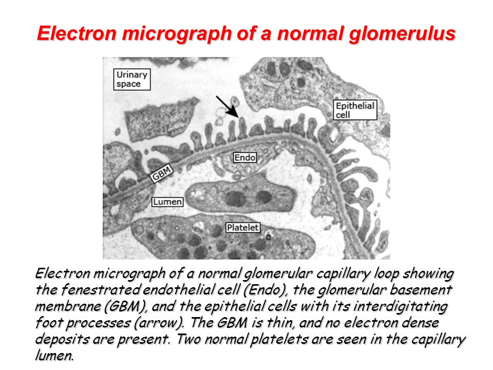 Electron micrograph of a normal glomerulus Electron micrograph of a normal glomerulus Electron micrograph of a normal glomerular capillary loop showing the fenestrated endothelial cell (Endo), the glomerular basement membrane (GBM), and the epithelial cells with its interdigitating foot processes (arrow).