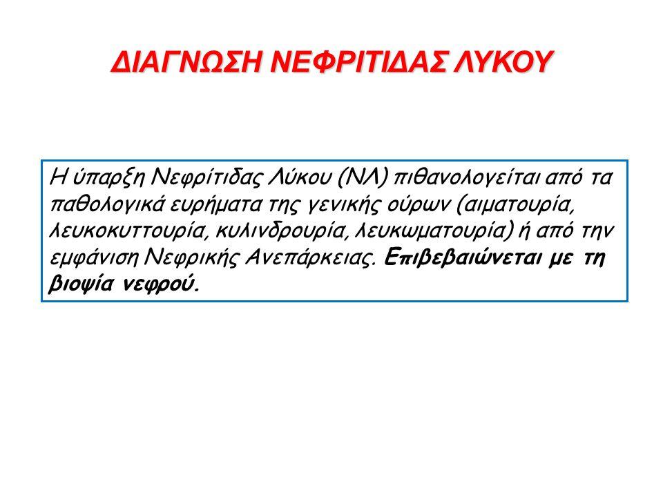 ΔΙΑΓΝΩΣΗ ΝΕΦΡΙΤΙΔΑΣ ΛΥΚΟΥ Η ύπαρξη Νεφρίτιδας Λύκου (ΝΛ) πιθανολογείται από τα παθολογικά ευρήματα της γενικής ούρων (αιματουρία, λευκοκυττουρία, κυλι