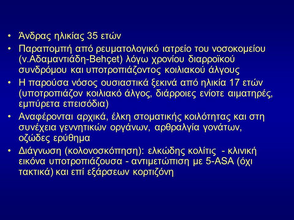 Άνδρας ηλικίας 35 ετών Παραπομπή από ρευματολογικό ιατρείο του νοσοκομείου (ν.Αδαμαντιάδη-Behçet) λόγω χρονίου διαρροϊκού συνδρόμου και υποτροπιάζοντο