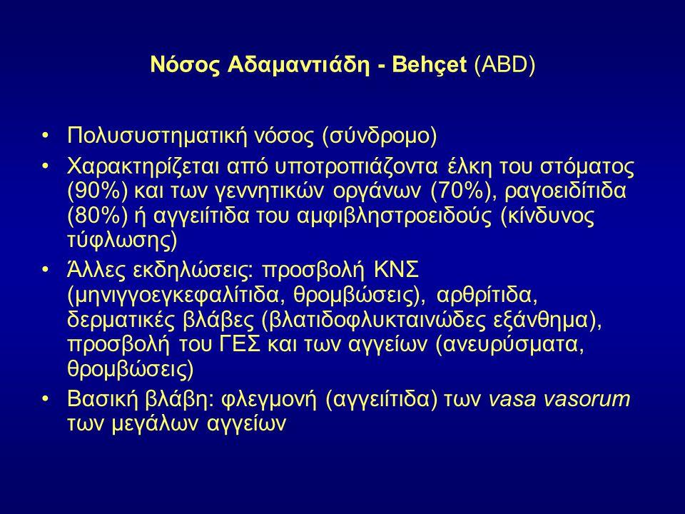 Νόσος Αδαμαντιάδη - Behçet (ABD) Πολυσυστηματική νόσος (σύνδρομο) Χαρακτηρίζεται από υποτροπιάζοντα έλκη του στόματος (90%) και των γεννητικών οργάνων