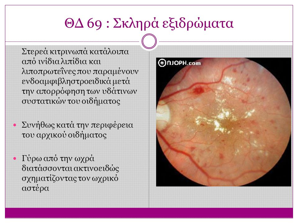 ΘΔ 69 : Σκληρά εξιδρώματα Στερεά κιτρινωπά κατάλοιπα από ινίδια λιπίδια και λιποπρωτεΐνες που παραμένουν ενδοαμφιβληστροειδικά μετά την απορρόφηση των