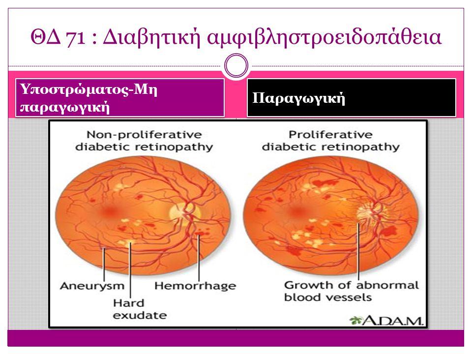 Υποστρώματος-Μη παραγωγική Παραγωγική ΘΔ 71 : Διαβητική αμφιβληστροειδοπάθεια
