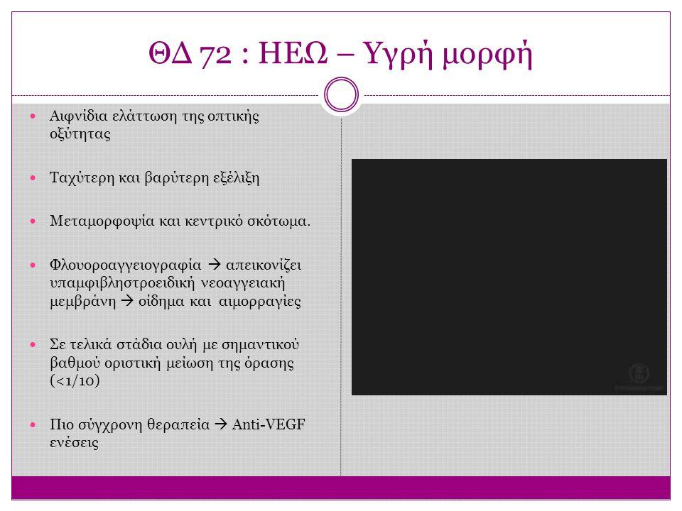 ΘΔ 72 : ΗΕΩ – Υγρή μορφή Αιφνίδια ελάττωση της οπτικής οξύτητας Ταχύτερη και βαρύτερη εξέλιξη Μεταμορφοψία και κεντρικό σκότωμα. Φλουοροαγγειογραφία 