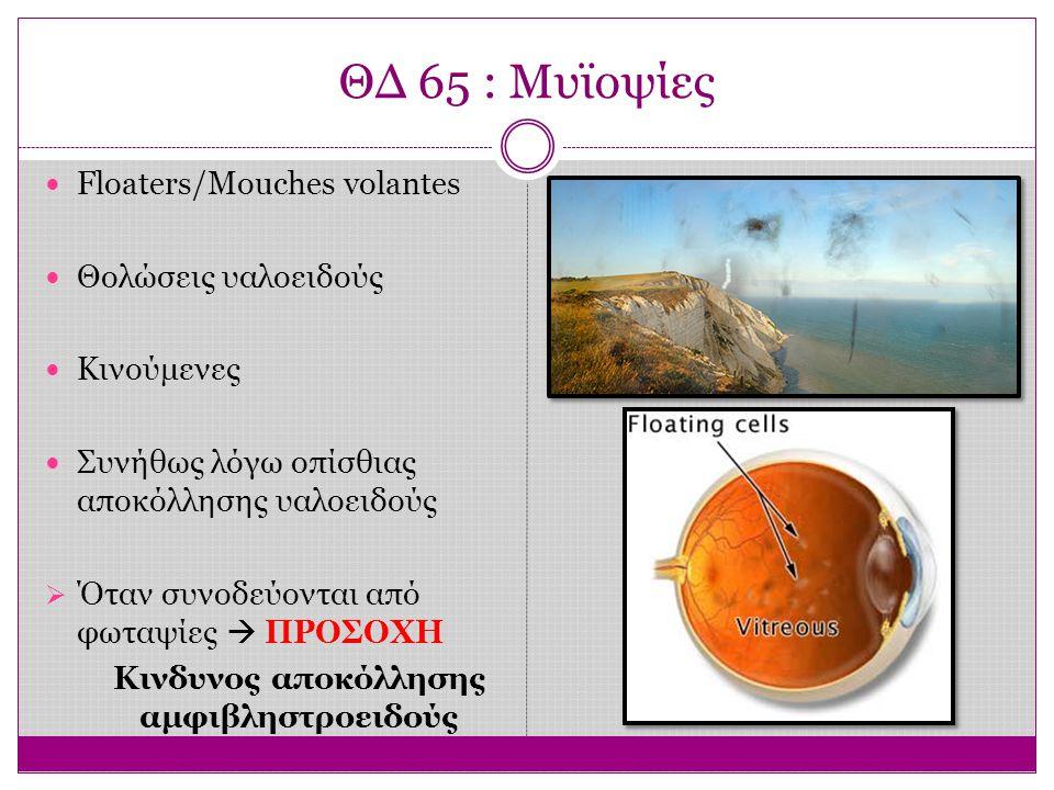 ΘΔ 65 : Μυϊοψίες Floaters/Mouches volantes Θολώσεις υαλοειδούς Κινούμενες Συνήθως λόγω οπίσθιας αποκόλλησης υαλοειδούς  Όταν συνοδεύονται από φωταψίες  ΠΡΟΣΟΧΗ Κινδυνος αποκόλλησης αμφιβληστροειδούς