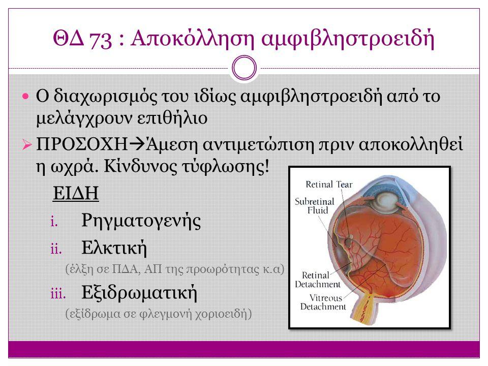 ΘΔ 73 : Αποκόλληση αμφιβληστροειδή Ο διαχωρισμός του ιδίως αμφιβληστροειδή από το μελάγχρουν επιθήλιο  ΠΡΟΣΟΧΗ  Άμεση αντιμετώπιση πριν αποκολληθεί