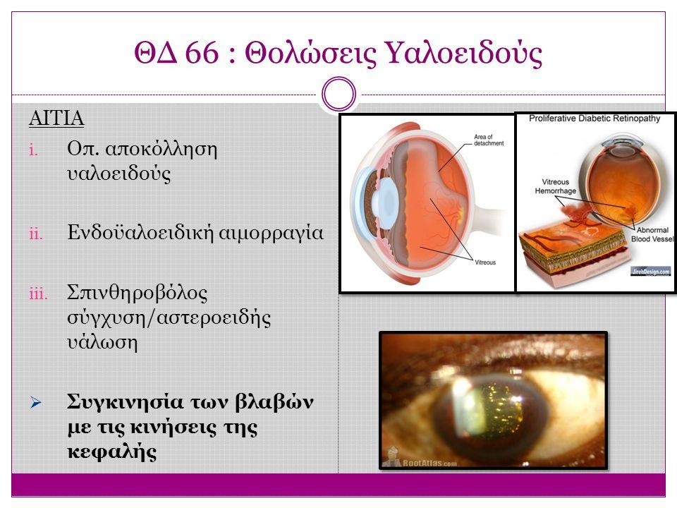 ΘΔ 66 : Θολώσεις Υαλοειδούς ΑΙΤΙΑ i. Οπ. αποκόλληση υαλοειδούς ii. Ενδοϋαλοειδική αιμορραγία iii. Σπινθηροβόλος σύγχυση/αστεροειδής υάλωση  Συγκινησί
