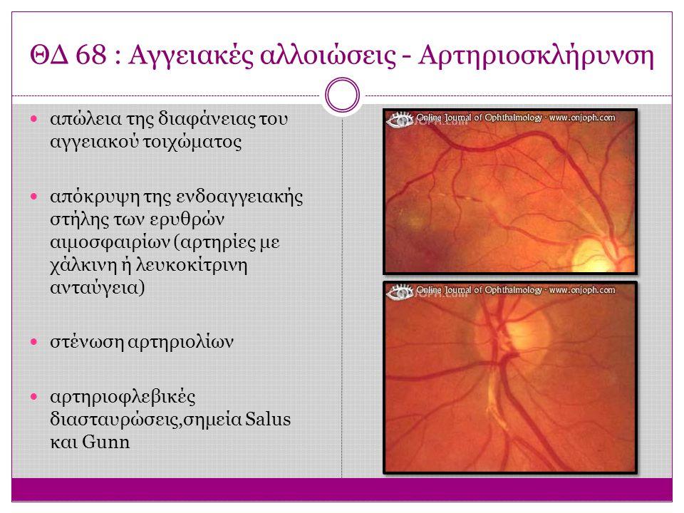ΘΔ 72 : Ηλικιακή Εκφύλιση Ωχράς (ΗΕΩ) Κύρια αιτία σοβαρής και μόνιμης απώλειας της κεντρικής όρασης στον πληθυσμό άνω των 60 ετών σε ΗΠΑ και Ευρώπη Δεν προκαλεί τυφλότητα, καθώς διατηρείται το μέσο και περιφερικό οπτικό πεδίο Στην Ελλάδα πάσχουν πάνω από 60.000 άτομα, από τα οποία 7.500 είναι «κατά νόμον τυφλά» Είναι αποτέλεσμα γεροντικών αλλοιώσεων στο ΜΕ, τη μεμβράνη του Bruch και τη χοριοτριχοειδική στιβάδα.