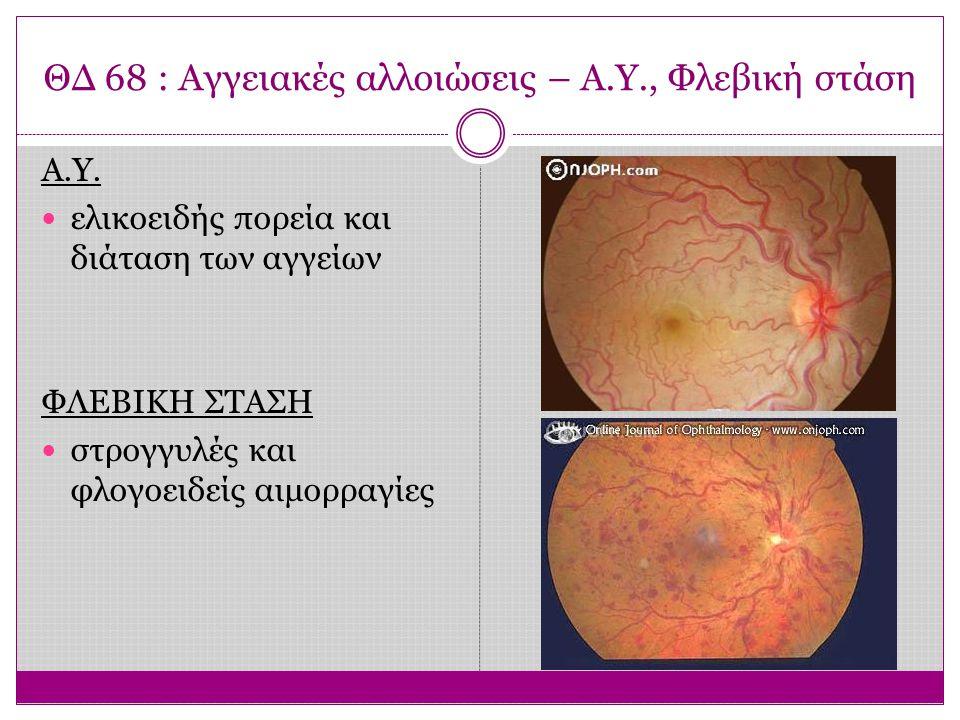 ΘΔ 72 : ΗΕΩ – Ξηρή μορφή Βαθμιαία ελάττωση της οπτικής οξύτητας, Μεταμορφοψίες και κεντρικό σκότωμα Συσσωρεύσεις υαλίνης κάτω από το μελάγχρουν επιθήλιο και τοπική ατροφία αυτού Δεν υπάρχει θεραπευτική αντιμετώπιση Σε επιλεγμένες περιπτώσεις χορηγούνται οπτικά βοηθήματα χαμηλής όρασης