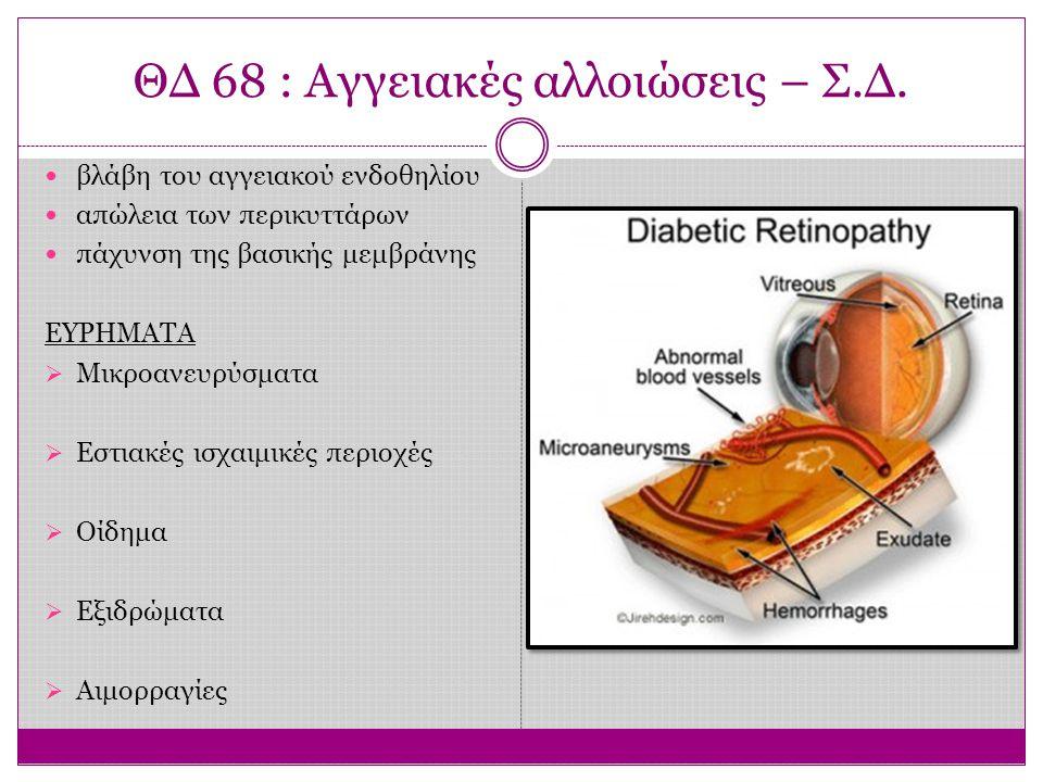 ΘΔ 68 : Αγγειακές αλλοιώσεις – Σ.Δ. βλάβη του αγγειακού ενδοθηλίου απώλεια των περικυττάρων πάχυνση της βασικής μεμβράνης ΕΥΡΗΜΑΤΑ  Μικροανευρύσματα